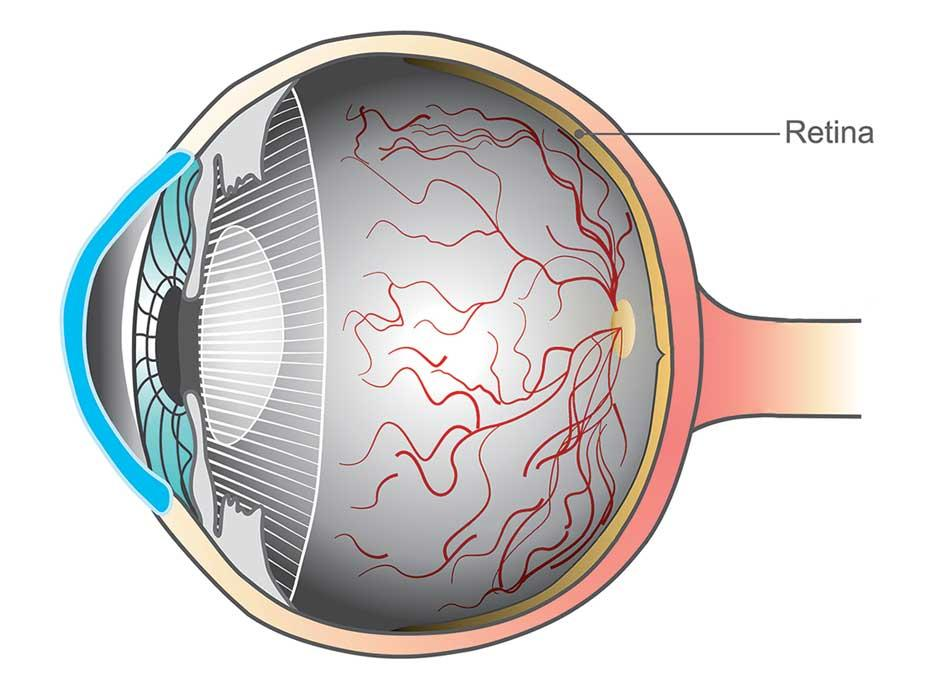 Be wise and protect your eyes
